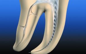 Пломбирование канала в стоматологии