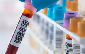 Ученые обнаружили белок, обновляющий кровь и продлевающий молодость