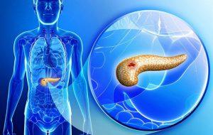 Модифицированный вирус гриппа поможет уничтожить опухоли рака поджелудочной железы