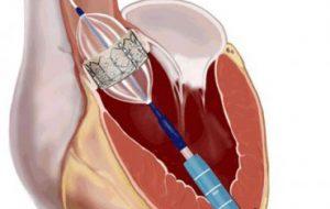 В Новосибирске создали первый в РФ протез митрального сердечного клапана для транскатетерной имплантации