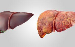 Лечение и профилактика цирроза печени: практическая помощь клиники Регенерация