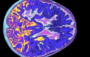 Ученые обнаружили молекулу, которая вызывает рассеянный склероз