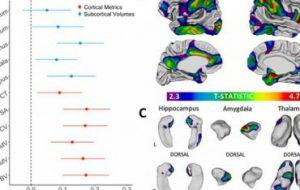 Социально-экономический статус и развитие мозга