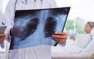 Ученые ИЭМ совместно с коллегами из США успешно испытали вакцину от гриппа и вирусной пневмонии