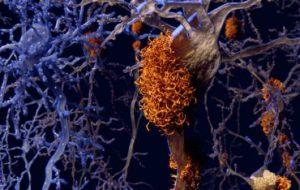 Болезнь Альцгеймера меняет реакцию мышей на изменение сахара в крови