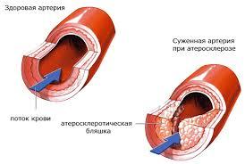 Сонная артерия «выдала» биологический возраст человека