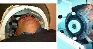 Ультразвук вернул сознание людям в состоянии бодрствующей комы