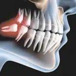 Удаление зубов мудрости может улучшить вкусовые ощущения
