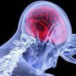 Очистка мозга после ишемического инсульта